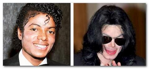 Su Michael Jackson, lo sbiancamento e la vitiligine. Mj